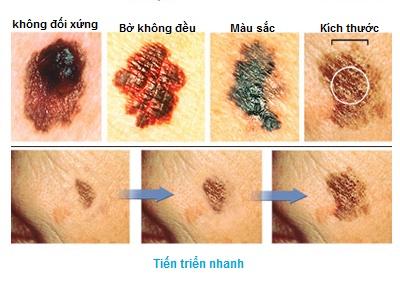Ung thư tiền liệt tuyến có thể chỉ cần theo dõi sát