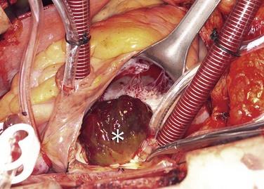 Ung thư tim dạng cơ vân