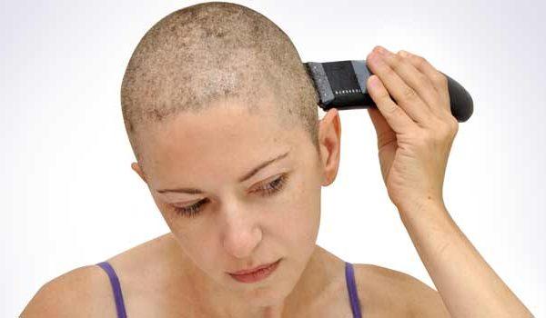 Kết quả hình ảnh cho rụng tóc do hóa trị